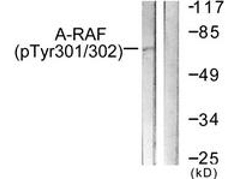Western Blotting (WB) image for anti-V-Raf Murine Sarcoma 3611 Viral Oncogene Homolog (ARAF) (AA 276-325), (pTyr302) antibody (ABIN1531487)