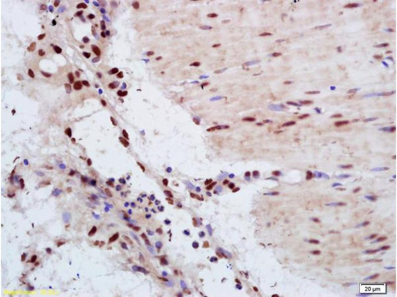 Immunohistochemistry (IHC) image for anti-YAP1 antibody (Yes-Associated Protein 1) (AA 230-280) (ABIN701485)