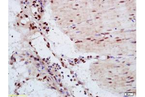 Immunohistochemistry (IHC) image for anti-Yes-Associated Protein 1 (YAP1) (AA 230-280) antibody (ABIN701485)