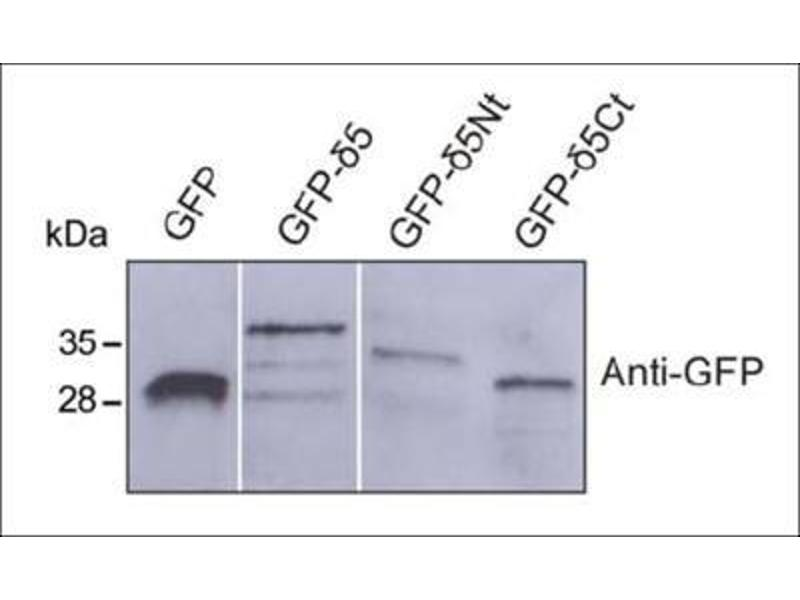 Western Blotting (WB) image for anti-GFP antibody (Green Fluorescent Protein) (ABIN153226)