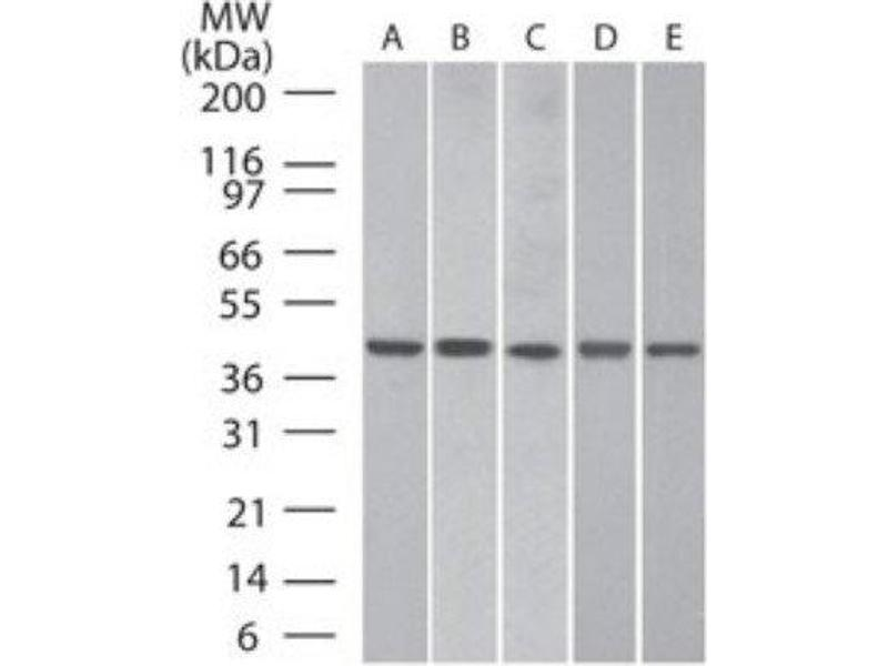 Western Blotting (WB) image for anti-Actin, beta (ACTB) antibody (ABIN4284408)