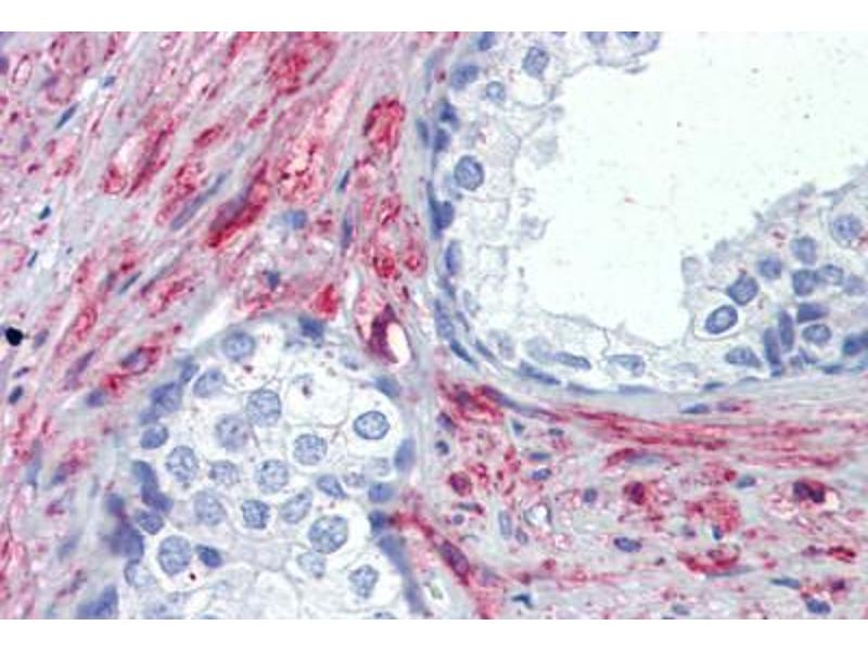 Image no. 2 for anti-PRKG antibody (ABIN462375)