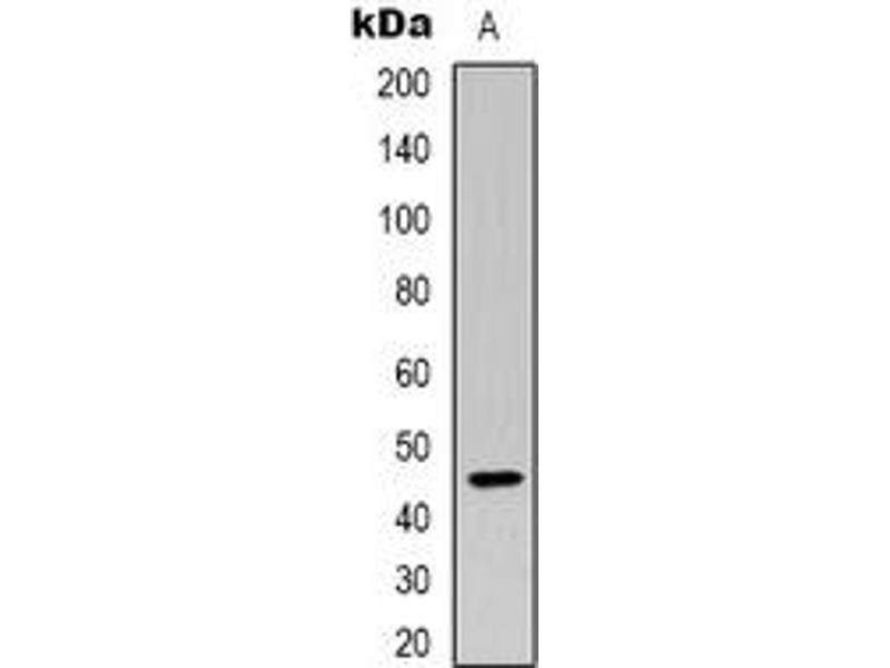 Western Blotting (WB) image for anti-Kallikrein B, Plasma (Fletcher Factor) 1 (KLKB1) (Heavy Chain) antibody (ABIN2957729)