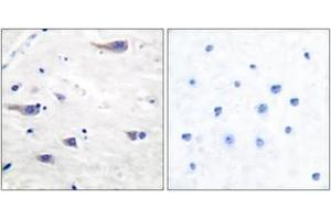 Image no. 3 for anti-Platelet-Derived Growth Factor Receptor, beta Polypeptide (PDGFRB) (AA 718-767) antibody (ABIN1532980)
