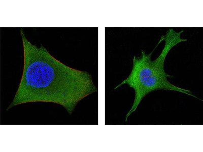 Immunocytochemistry (ICC) image for anti-Wingless-Type MMTV Integration Site Family, Member 1 (WNT1) antibody (ABIN1846734)