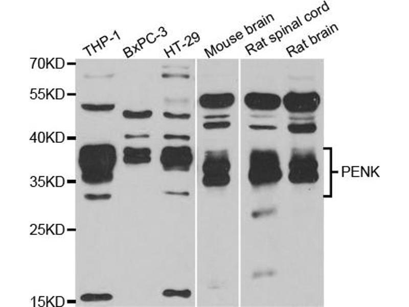 Western Blotting (WB) image for anti-Proenkephalin (PENK) antibody (ABIN2985321)