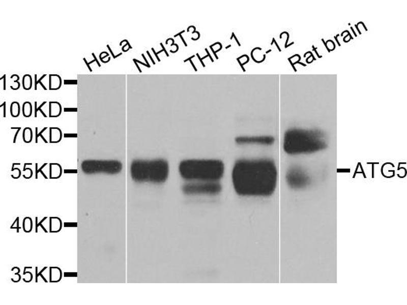 Image no. 1 for anti-ATG5 Autophagy Related 5 Homolog (S. Cerevisiae) (ATG5) antibody (ABIN6566496)