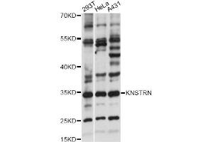 Image no. 1 for anti-Kinetochore-Localized Astrin/SPAG5 Binding Protein (KNSTRN) antibody (ABIN6294154)