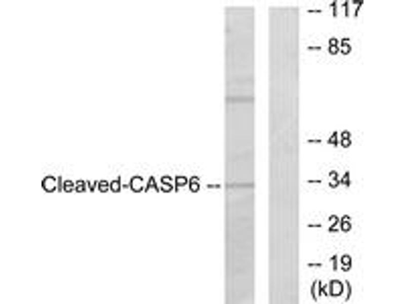 Western Blotting (WB) image for anti-Caspase 6 antibody (Caspase 6, Apoptosis-Related Cysteine Peptidase) (Cleaved-Asp162) (ABIN1536082)