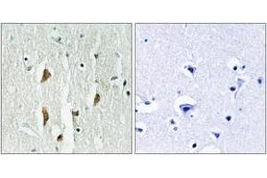 Image no. 2 for anti-P21-Activated Kinases 1/2/3 (PAK1/2/3) (AA 391-440) antibody (ABIN1532384)