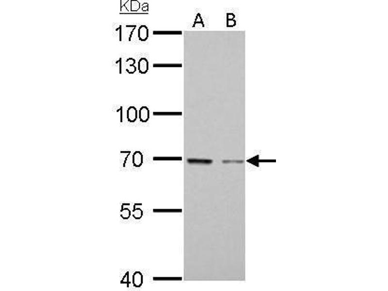 Western Blotting (WB) image for anti-GAS6 antibody (Growth Arrest-Specific 6) (Center) (ABIN2856080)