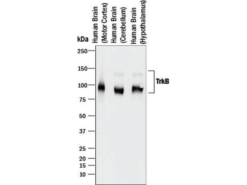 Western Blotting (WB) image for anti-Neurotrophic Tyrosine Kinase, Receptor, Type 2 (NTRK2) antibody (ABIN4900869)
