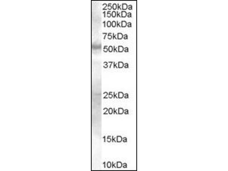 image for anti-SMAD9 Antikörper (SMAD Family Member 9) (Internal Region) (ABIN372891)