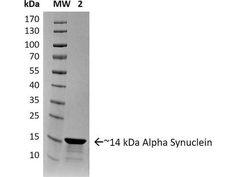 SDS-PAGE (SDS) image for Synuclein, alpha (SNCA) (full length) protein (ABIN5065824)