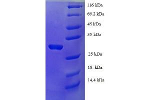 Image no. 1 for P53 and DNA-Damage Regulated 1 (PDRG1) (AA 1-133), (full length) protein (His-SUMO Tag) (ABIN5711867)