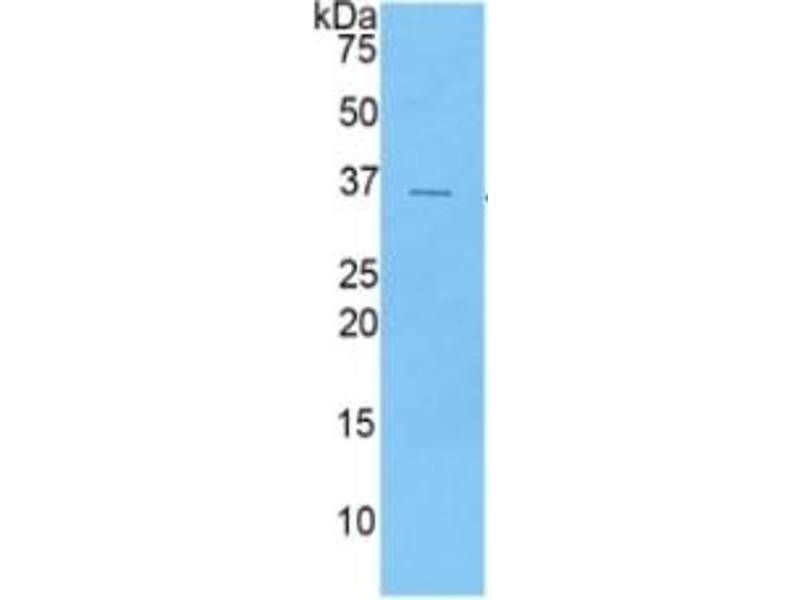 Chemokine (C-X-C Motif) Ligand 5 (CXCL5) ELISA Kit (2)