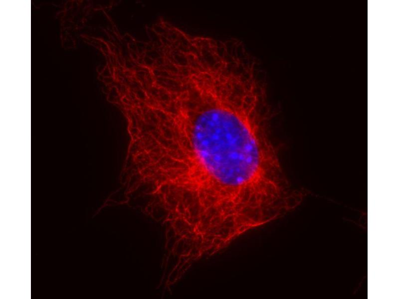 Immunofluorescence (IF) image for anti-Tubulin, beta (TUBB) (N-Term) antibody (ABIN93914)