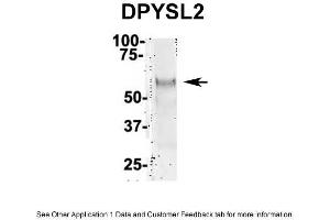 Image no. 2 for anti-Dihydropyrimidinase-Like 2 (DPYSL2) (Middle Region) antibody (ABIN2784711)