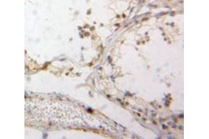 Image no. 2 for anti-TATA-Binding Protein-Associated Phosphoprotein (DR1) (AA 2-170) antibody (ABIN2117613)