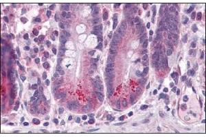 Image no. 1 for anti-Baculoviral IAP Repeat-Containing 6 (BIRC6) (C-Term) antibody (ABIN1450019)