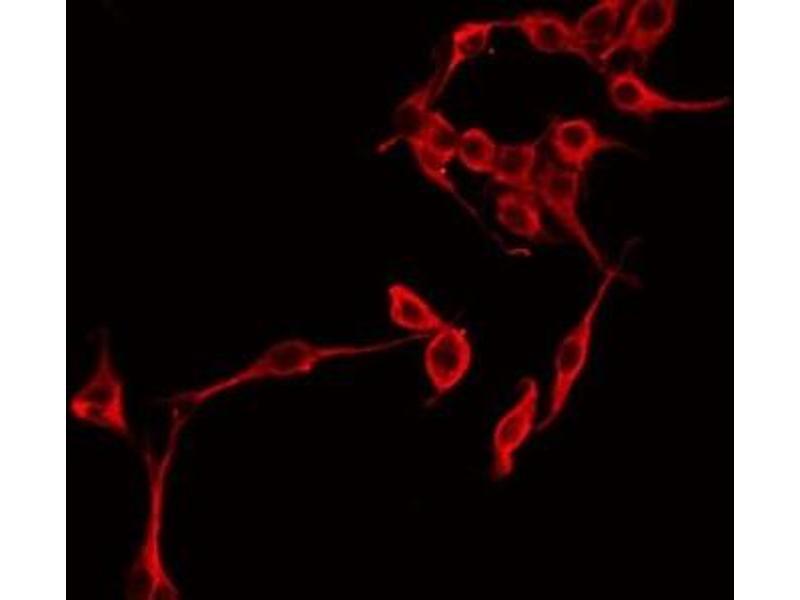 Immunofluorescence (fixed cells) (IF/ICC) image for anti-Serpin Peptidase Inhibitor, Clade G (C1 Inhibitor), Member 1 (SERPING1) antibody (ABIN6256974)