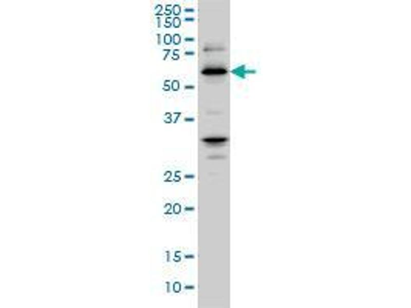 Immunohistochemistry (IHC) image for anti-Retinoblastoma Binding Protein 4 antibody (RBBP4) (AA 316-426) (ABIN393749)