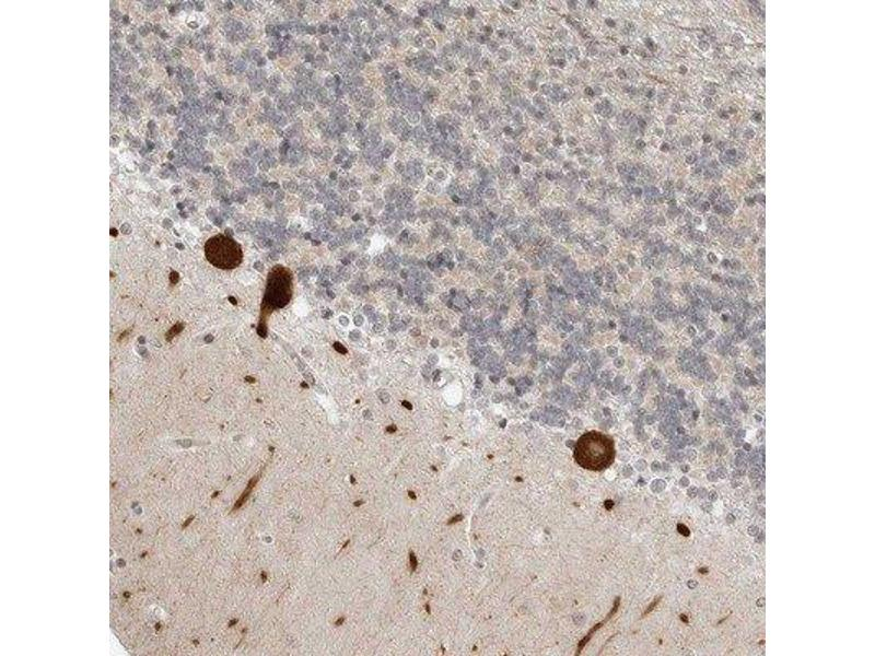 Immunohistochemistry (Paraffin-embedded Sections) (IHC (p)) image for anti-Protein Phosphatase 2, Regulatory Subunit B', gamma (PPP2CA) antibody (ABIN4347114)