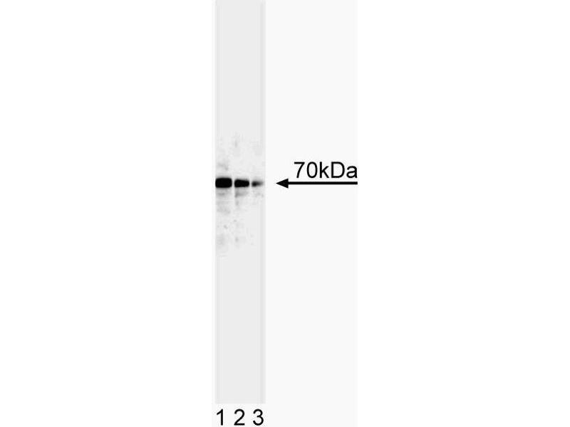 Western Blotting (WB) image for anti-Tumor Protein P73 (TP73) (AA 380-367) antibody (ABIN967629)