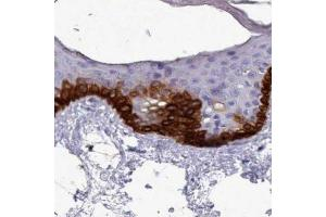 Immunohistochemistry (IHC) image for anti-RAC3 Antikörper (Ras-Related C3 Botulinum Toxin Substrate 3 (Rho Family, Small GTP Binding Protein Rac3)) (ABIN4349055)