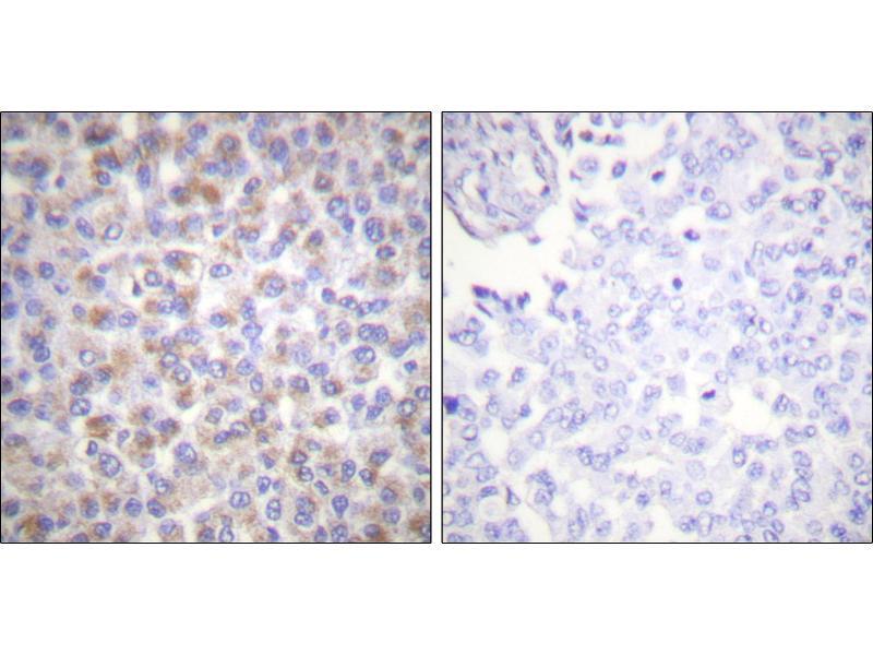 Image no. 1 for anti-Tyrosine 3-Monooxygenase/tryptophan 5-Monooxygenase Activation Protein, zeta Polypeptide (YWHAZ) (Ser58) antibody (ABIN1574326)