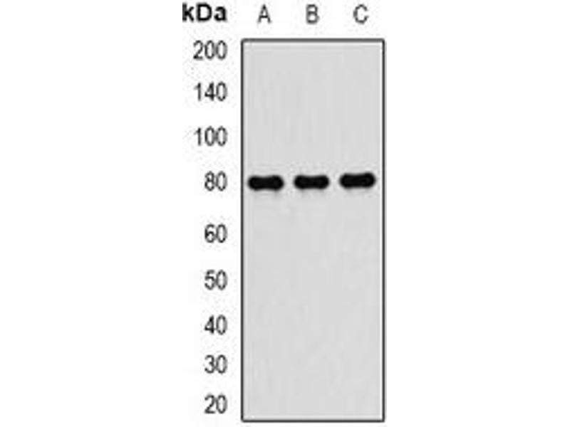 Western Blotting (WB) image for anti-Transporter 2, ATP-Binding Cassette, Sub-Family B (MDR/TAP) (TAP2) antibody (ABIN2967081)