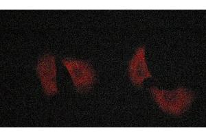 Image no. 1 for anti-BCL2-Associated X Protein (BAX) antibody (ABIN6260205)