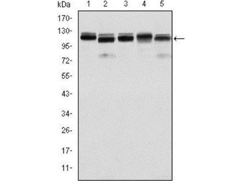 Western Blotting (WB) image for anti-Bone Morphogenetic Protein Receptor, Type II (serine/threonine Kinase) (BMPR2) antibody (ABIN4284959)