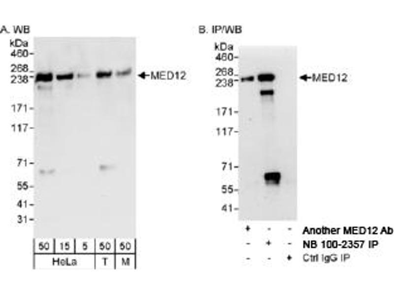 Western Blotting (WB) image for anti-Mediator Complex Subunit 12 (MED12) (C-Term) antibody (ABIN250749)