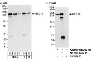 Western Blotting (WB) image for anti-Mediator Complex Subunit 12 (MED12) (C-Term) antibody (ABIN250749)