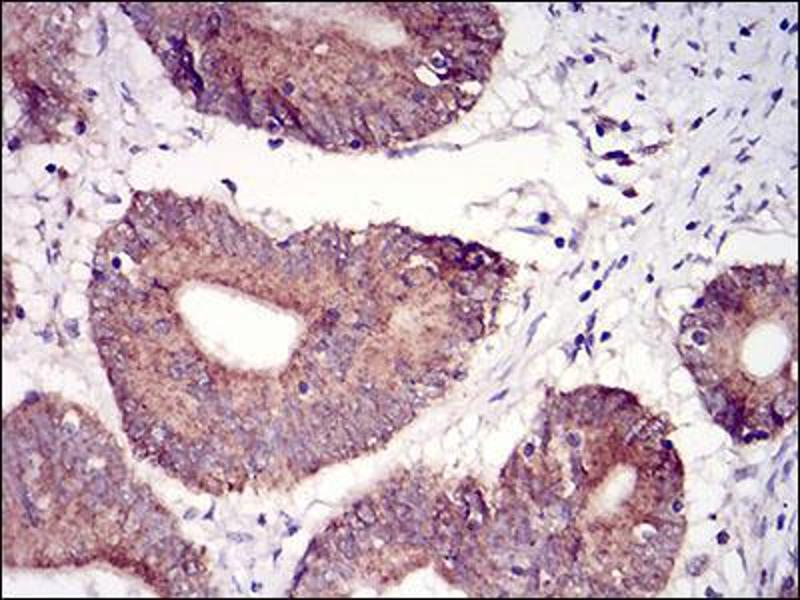 Immunohistochemistry (IHC) image for anti-TUBE1 antibody (Tubulin, epsilon 1) (AA 314-472) (ABIN5542399)