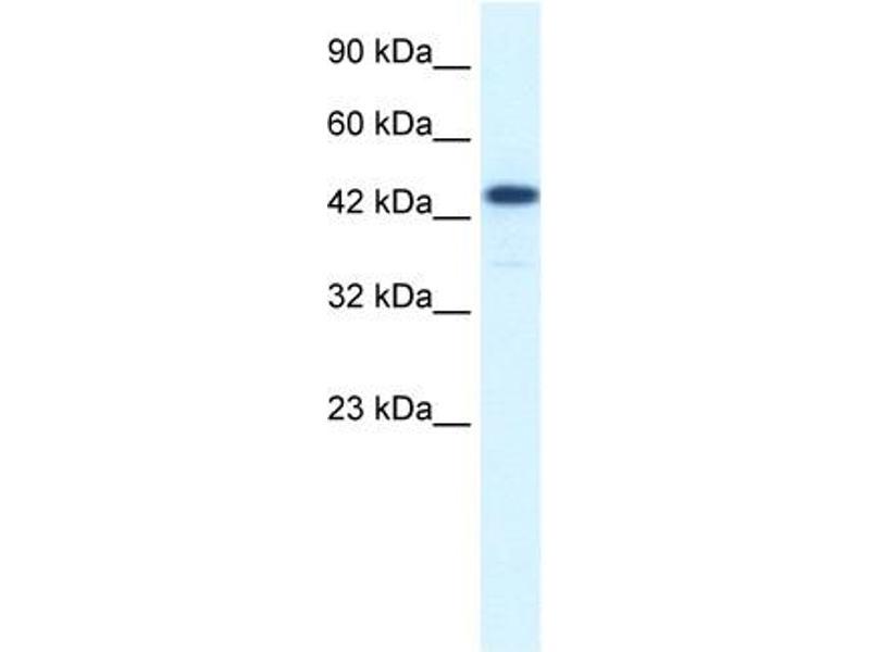Western Blotting (WB) image for anti-REST Corepressor 3 (RCOR3) (N-Term) antibody (ABIN182936)