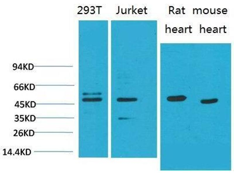Western Blotting (WB) image for anti-SMAD, Mothers Against DPP Homolog 3 (SMAD3) antibody (ABIN3181632)