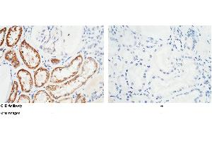 Image no. 1 for anti-C1D Nuclear Receptor Corepressor (C1D) (AA 1-141) antibody (ABIN1999703)