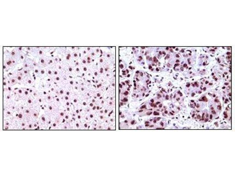 Immunohistochemistry (IHC) image for anti-Nucleophosmin (Nucleolar phosphoprotein B23, Numatrin) (NPM1) antibody (ABIN969325)
