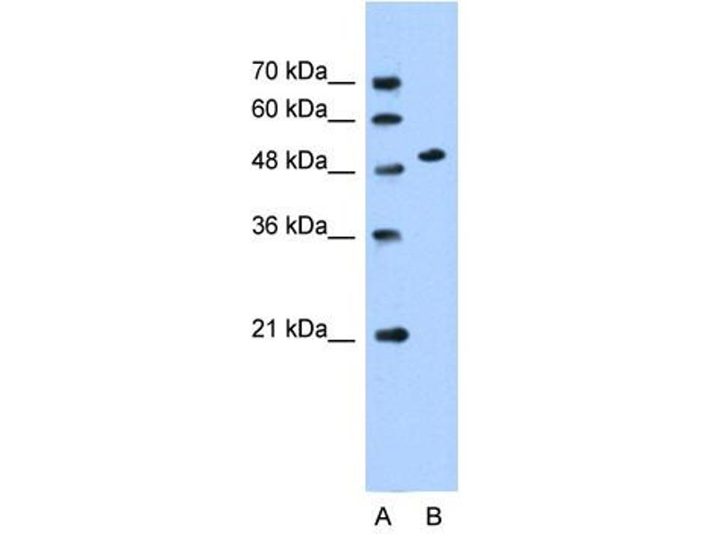 Western Blotting (WB) image for anti-Solute Carrier Family 30 (Zinc Transporter), Member 1 (SLC30A1) (Middle Region) antibody (ABIN310536)