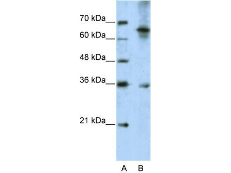 Western Blotting (WB) image for anti-Wingless-Type MMTV Integration Site Family, Member 9B (WNT9B) (C-Term) antibody (ABIN2776704)