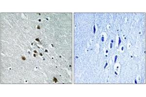Image no. 1 for anti-Splicing Factor 1 (SF1) (AA 48-97), (pSer82) antibody (ABIN1531391)