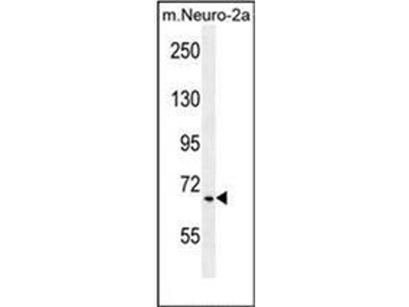 Western Blotting (WB) image for anti-hCG_17324 (AA 508-538), (C-Term) antibody (ABIN952691)