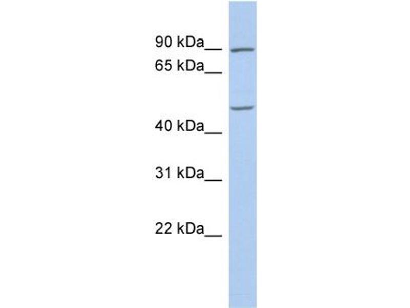 Western Blotting (WB) image for anti-Pleiomorphic Adenoma Gene 1 (PLAG1) (C-Term) antibody (ABIN2780444)