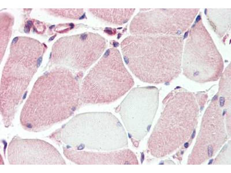 Image no. 2 for anti-Membrane transport protein XK (AA 22-38) antibody (ABIN462089)