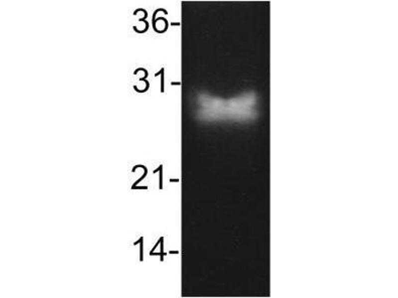 Western Blotting (WB) image for anti-BCL2 antibody (B-Cell CLL/lymphoma 2) (ABIN4283388)