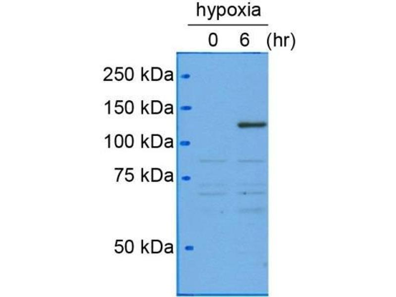 Western Blotting (WB) image for anti-Hypoxia Inducible Factor 1, alpha Subunit (Basic Helix-Loop-Helix Transcription Factor) (HIF1A) antibody (ABIN151033)