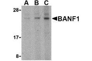 Image no. 1 for anti-Barrier To Autointegration Factor 1 (BANF1) (N-Term) antibody (ABIN499409)