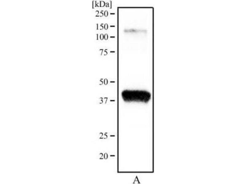 Western Blotting (WB) image for anti-OGG1 antibody (8-Oxoguanine DNA Glycosylase) (ABIN249594)